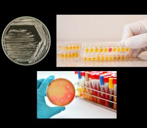 Les différentes étapes d'analyse de l'urine des patients atteints de pyélonéphrite