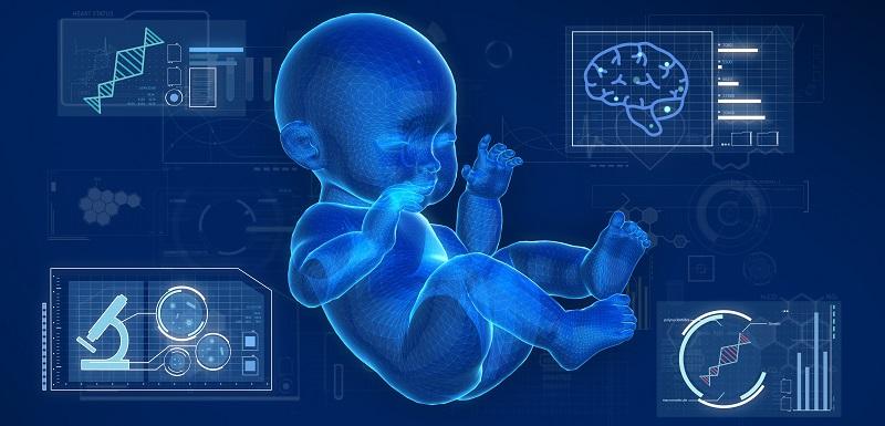 identification d'anomalies des connexions cérébrales chez des enfants âgés de 6 mois