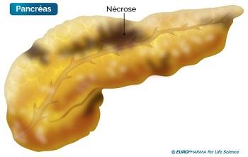 necrose-pancreas
