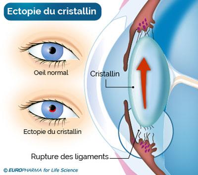 rupture Cristallin