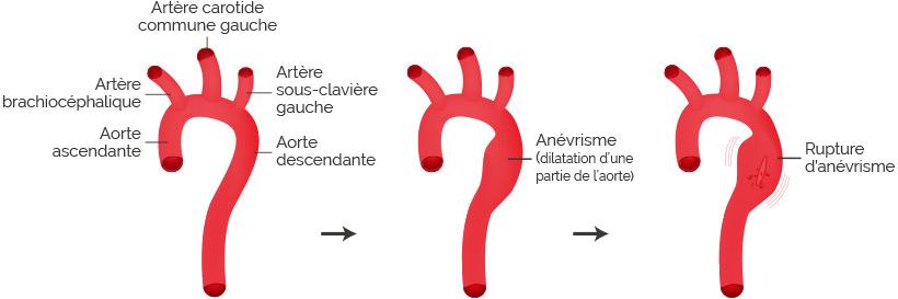 rupture anevrisme aortique