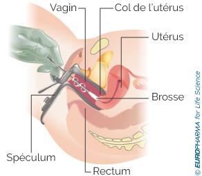 Réalisation du frottis vaginal