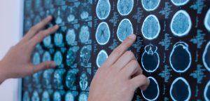 """Un cerveau """"masculin"""" chez les filles autistes"""