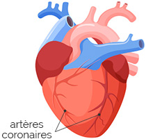arteres-coronaires