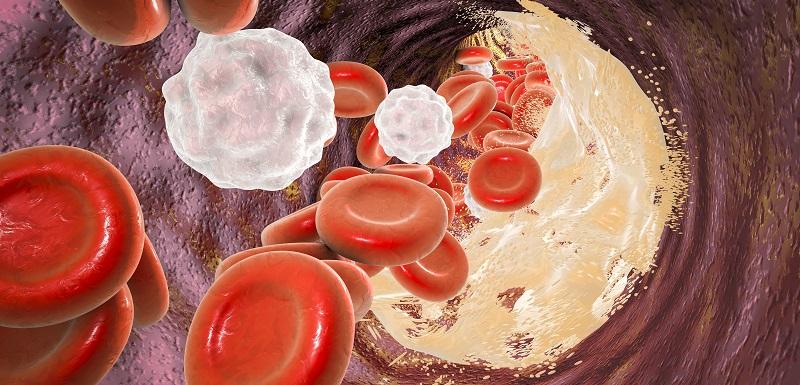 atherosclerose-autophagie