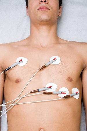 Déroulement ECG