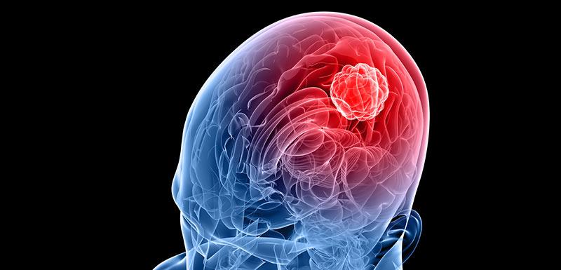 le glioblastome est un cancer du cerveau