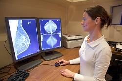 Résultats radiologiques après mammographie