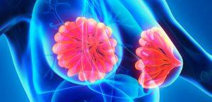 Cancer du sein : moins de bactéries dans le tissu mammaire