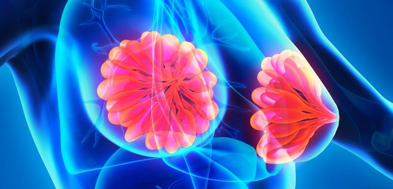 composition bactérienne-tissu mammaire cancéreux-déficit de bactéries Methylobacterium