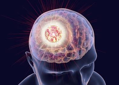 tumeurs du cerveau