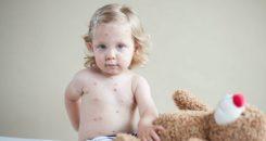 Focus sur une complication mortelle de la rougeole