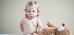 Complications de la rougeole : parfois mortelles!