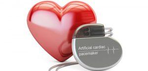Vivre avec un pacemaker