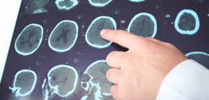 Traitement chirurgical de l'épilepsie réfractaire : de nouvelles données
