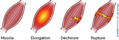 schéma déchirure musculaire