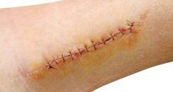 Chirurgie : surveiller à distance les plaies post-opératoires