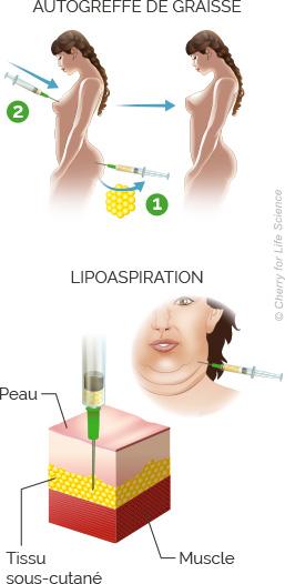 autogreffe de graisse et lipoaspiration