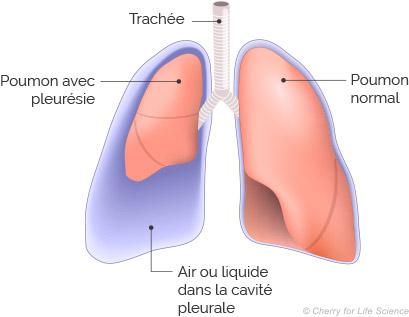 poumons pleuresie