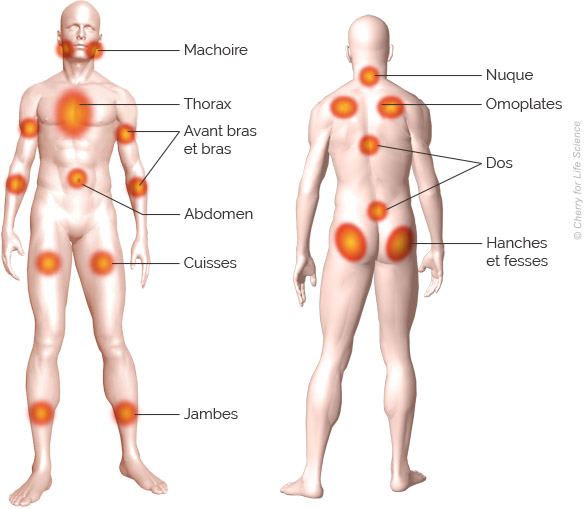zones douloureuses