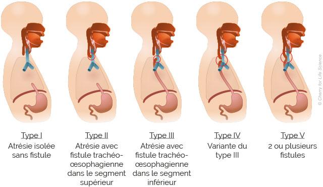 Atrésie de l'œsophage : symptômes & traitement - Santé sur le Net