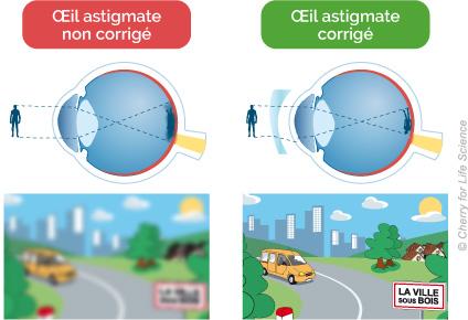 shema astigmate vision floue et vison corrigée nette
