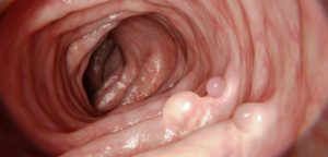 Cancer colorectal : premiers résultats du nouveau test de dépistage