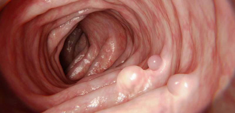 vue intérieure du côlon avec polypes dépistage du cancer colorectal