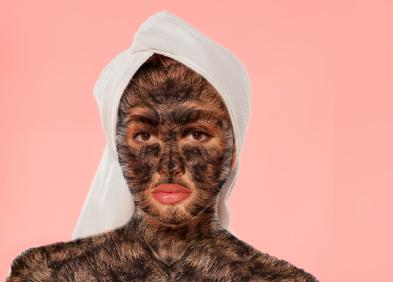 hypertrichose femme avec des poils sur le visage et le corps