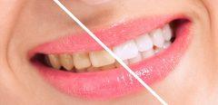 Blanchir ses dents sans les abîmer, c'est possible ?