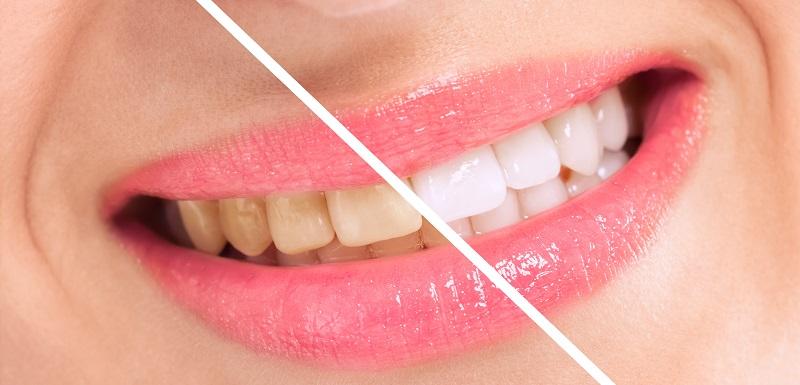 Les dents avant blanchiment et après