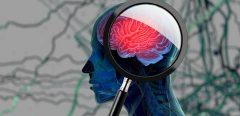 Tumeurs cérébrales : un médicament pour mieux contrer la résistance à la chimiothérapie