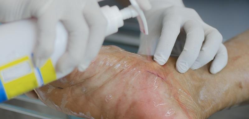 Un soignant traite la plaie chronique d'un patient