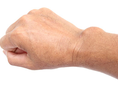 tumeur - kyste - poignet