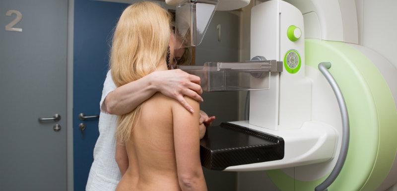 Dépistage systématique cancer du sein.