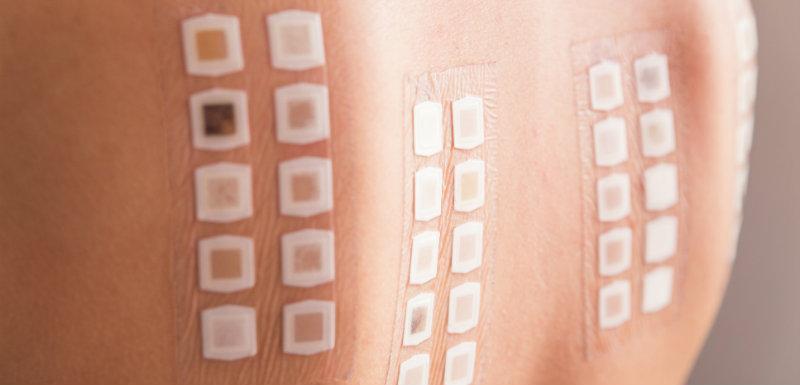 Patch-test sur l'arrière de la patiente pour prescription médicaments.