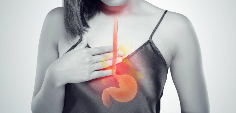 reflux gastrique
