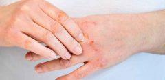 Flore intestinale : quel rôle dans les allergies cutanées ?