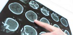 Maladie d'Alzheimer et défaut de glutathion dans le cerveau