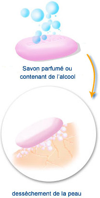 radiodermite : utiliser un savon sans alcool