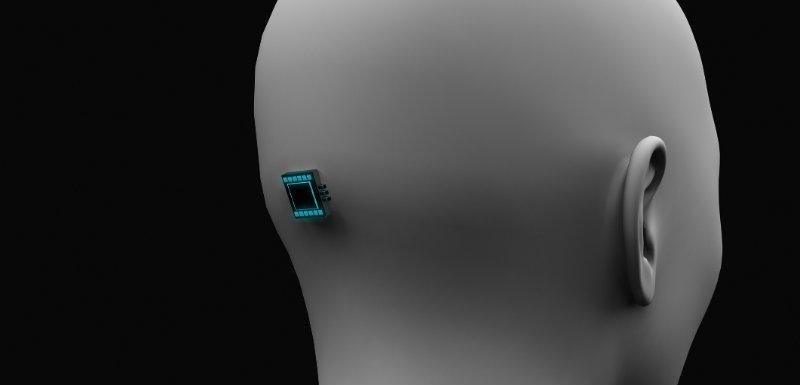 implant cérébral