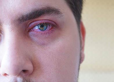 Blépharite : définition, symptômes et traitement