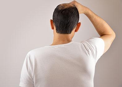 Calvitie : définition, symptômes et traitement