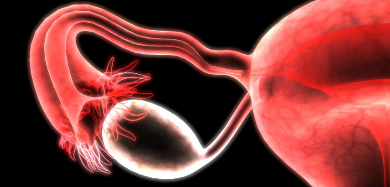cancer-ovaire-test