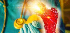 Une nouvelle technique de cryopréservation pour optimiser les greffes de ligaments