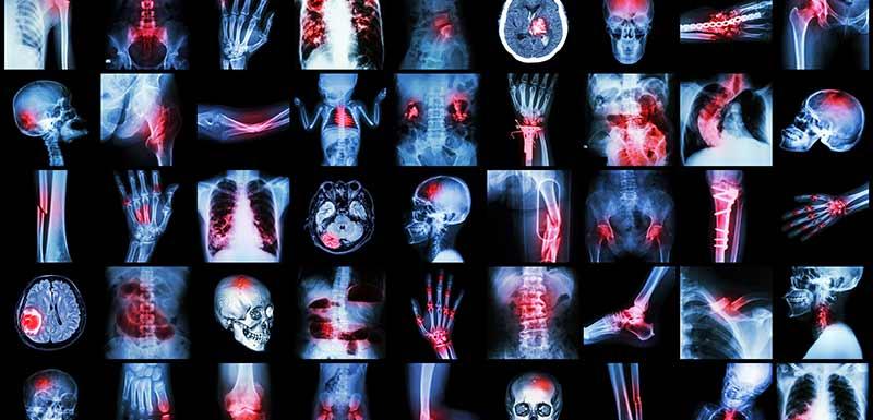 Accoutumance et antidouleurs - images médicales