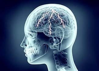 électricité cerveau
