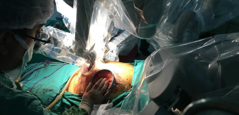 Des robots chirurgiens dans les blocs opératoires