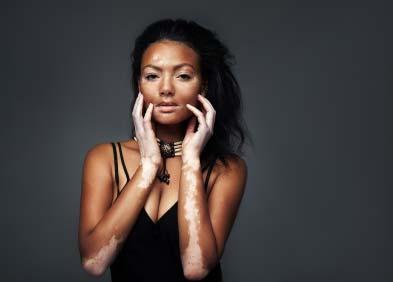 Vitiligo : définition, symptômes et traitement