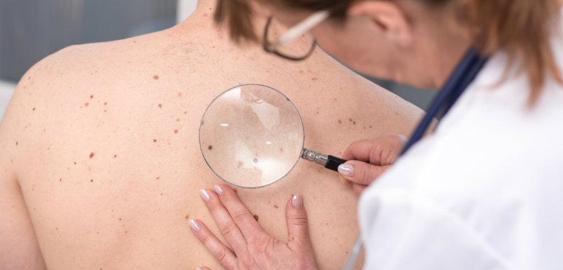 melanome-detection